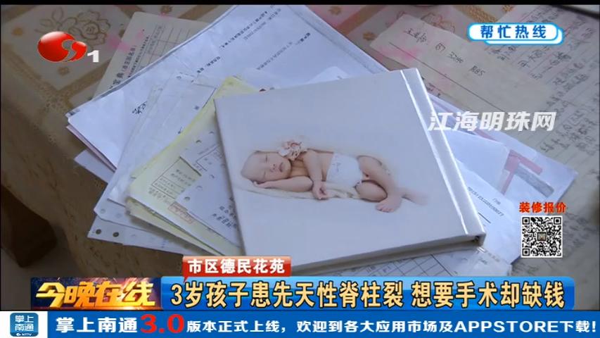 市区德民花苑:3岁孩子患先天性脊柱裂 想要手术却缺钱